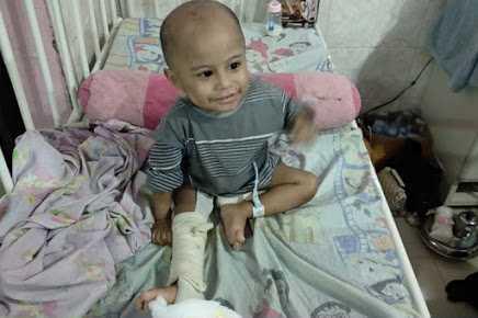 BEJAT !!! GARA-GARA wajah anaknya mirip dengan mantan suaminya,anak tersebut mengalami patah kaki