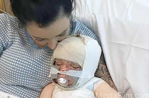 Ibunya Memasak Sambil Video Call, Balita Ini Terguyur 9 Liter Air Panas hingga Alami Syok Toksik