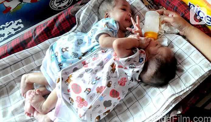 Bayi Kembar Siam di Sukabumi Ini Butuh Bantuan untuk Operasi Pemisahan