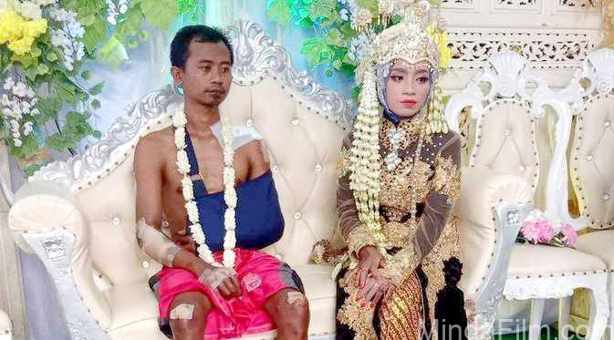 Viral Pria Tampil Penuh Luka di Hari Pernikahan, Netizen Ingatkan Nasihat Orang Tua